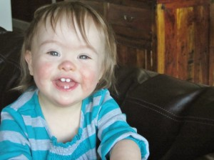 ChildrenwithDownSyndrome-Molly